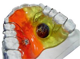 Dentagent Zahnspange